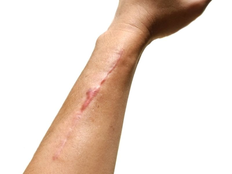 ScarWork may help with scars after surgery