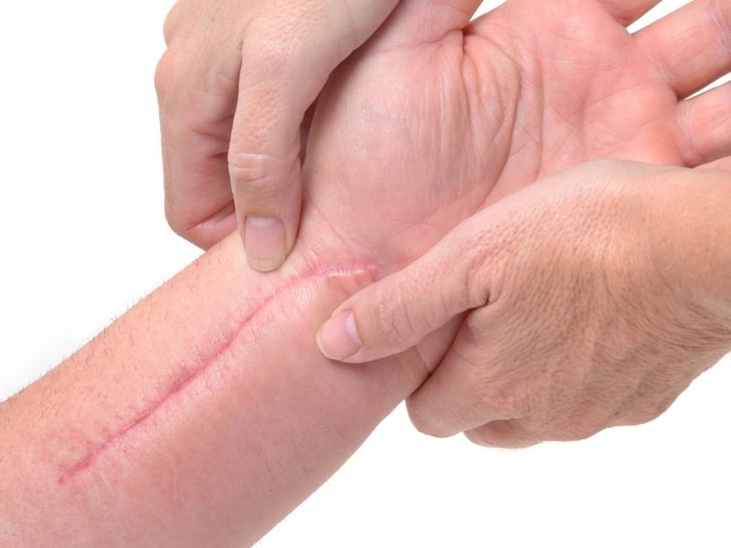 The ScarWork technique can help with physical scars and is available from Sarah Butler Therapies